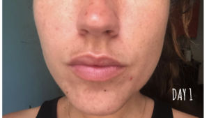 Traitement des imperfections du visage - Jour 1