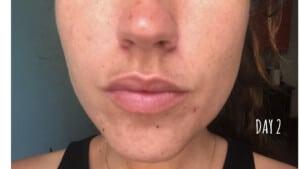 Traitement des imperfections du visage - Jour 2