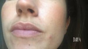 Traitement des imperfections du visage - Jour 4