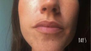 Traitement des imperfections du visage - Jour 5